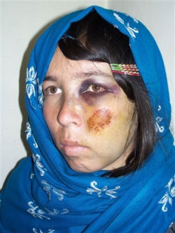 women under the taliban In kunduz, local leader has acolytes throw acid on the members of a family  because the father had refused to give his daughter in marriage.
