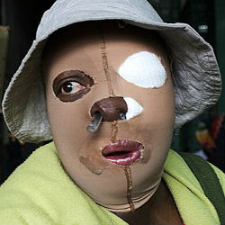 At one time known for their beauty, Colombian acid attacks victims now live under reduced circumstances. Disfigured, disabled, these once proud women are now often reduced to begging in the streets for their livelihood.