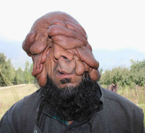 An Indian man, currently without a face - but rather folds of flesh, will soon be a proud father-to-be. However, the 32-year-old Mohammad Latif Khatana, who cannot see or work due to the severe creases on his face is now worried if his rare malady will be transferred to his progeny.