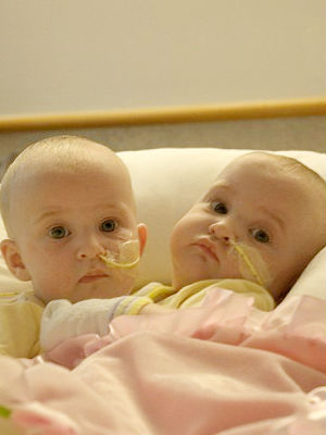 The girls were nine-months-old and joined at the chest. The operation went flawlessly, and the twins now can look forward to productive lives.