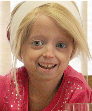 Children afflicted with progeria become highly evident before the child turns a year old. Although their mental faculties are normal, the said afflicted children stop growing, lose body fat and suffer from wrinkled skin and hair loss.