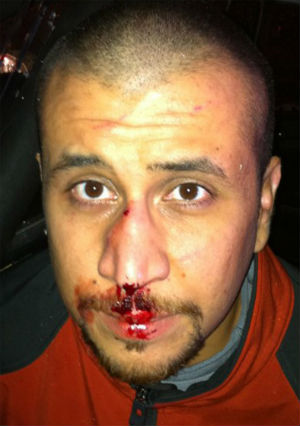 A newly released police photo of George Zimmerman appears to bolster his claim of self-defense.