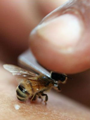 According to some recent research, however, there is hope that something commonly found in nature can now be used to prevent the transmission of HIV - bee venom.
