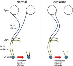 Called achiasma, the condition means all the signals from his left eye end up in his left visual cortex and all the signals from his right eye end up in his right visual cortex.