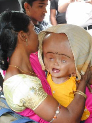 Runa Begum of India is a 16-month-old little girl who suffers from the rare - and horrific malady known as hydrocephaly. The condition causes the patient's head to fill with fluids, causing the head to grow to horrific size.