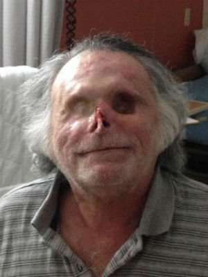 Ron Poppo has declined additional reconstructive surgery and is learning to adjust to his blindness.