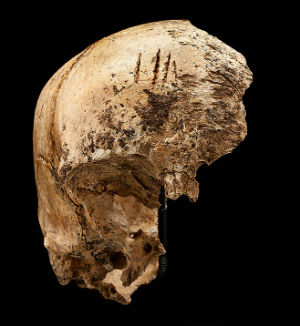 Four shallow chop marks on the top of the girl's skull, evidence of cannibalism during the 'starving time' over the winter of 1609-1610.