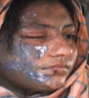 Now in critical condition in the Khyber Pakhtunkhwa province of Pakistan, Bushra Waiz suffered burns to the right side of her face. Doctors said that her right leg, arm and eye were also injured.