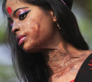 About 90 percent of acid attack victims are women and children.