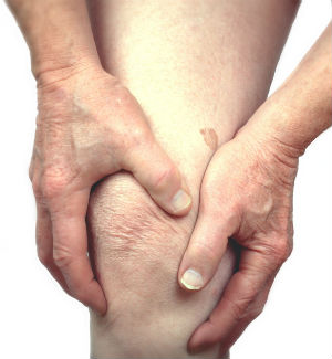 Although there is currently no cure for arthritis, numerous treatments are used to alleviate sufferers' pain.