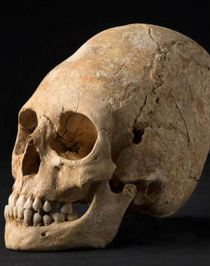 Her skull warped into a deformed, pointy shape, the remains of an aristocratic woman has been unearthed in a French necropolis.