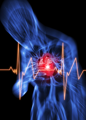 Broken heart syndrome symptoms are like heart attack symptoms.