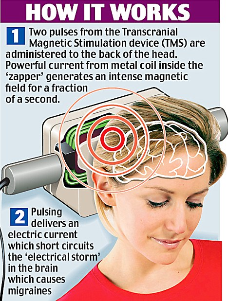 The size and weight of a hair-dryer, the device is held against the back of the head at the first sign of a migraine.