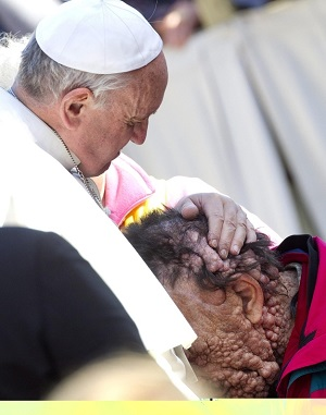 The contemporary Francis kissing the contemporary leper