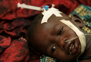 A malaria infected child receiving treatment.