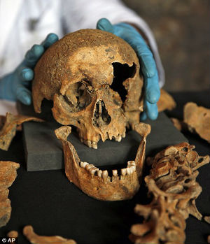 The skeletons, by and large, were poor people. Many of the skeletons showed signs of malnutrition consistent with the 'Great Famine' that struck Europe 30 years before the Black Death.