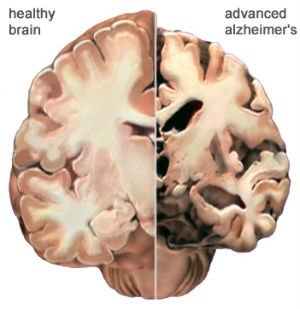 A healthy brain section (left) next to a section that has been ravaged by Alzheimer's disease (right).