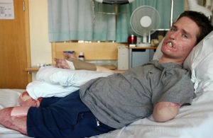A British man has lost all four of his limbs after a common cold developed into a rare flesh-eating bacteria.