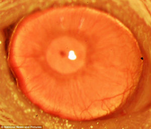 Adult stem cells have allowed scientist to regrow cornea tissue which could help cure blindness.