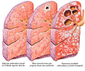 Tuberculosis is a disease which slowly destroys the lungs of the infected person. Around 50% of those whose tuberculosis becomes active die if untreated.