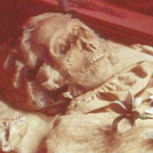 GENESIS OF TUBERCULOSIS? Hungarian mummies suggest TB began in Rome