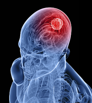 Brain tumor growth linked to increase in brain activity