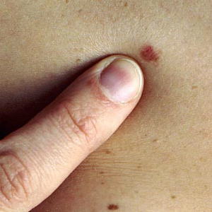 Important need-to-know symptoms and signs of skin cancer