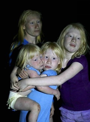 Meet the 'Children of the Moon': Panama villages' albinos make up 10 percent of population