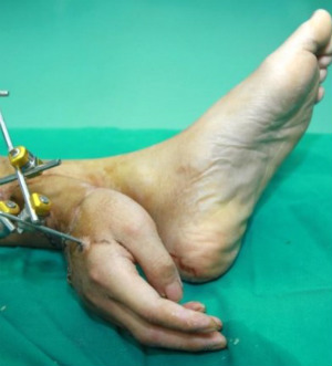 Man lives with hand attached to ankle while waiting for reattachment surgery