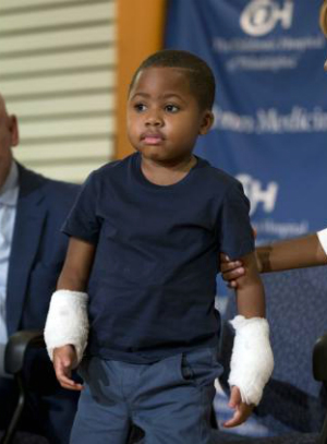 8-year-old boy becomes youngest double-hand transplant patient