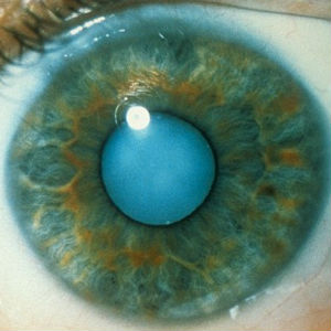 New eye drops may soon replace cataract surgery