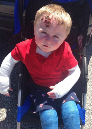 Four-year-old boy with 'butterfly skin' disease lives every day in pain
