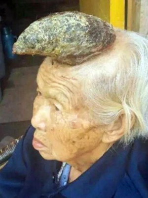 87-year-old woman to have unusual 'unicorn horn' removed from head