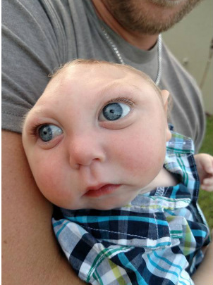 Baby born missing majority of skull miraculously beats the odds, reaches first birthday
