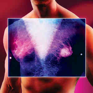 Breast Cancer in Men: More men having double mastectomies