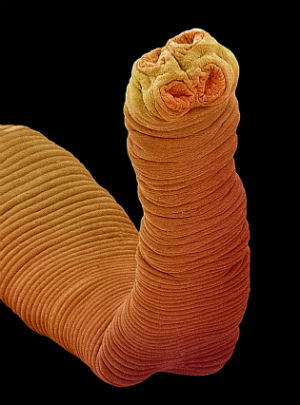 TERMINAL TAPEWORM: Colombian man found to have tapeworm that contributed cancer cells