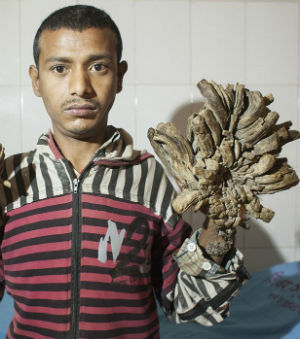 MAN TURNING INTO TREE! Bangladeshi man suffers from rare skin disease that turns skin into bark