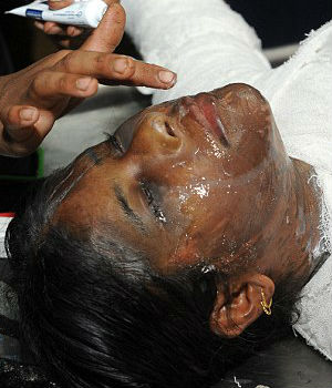 Woman has ACID thrown on her face by husband over dowry argument