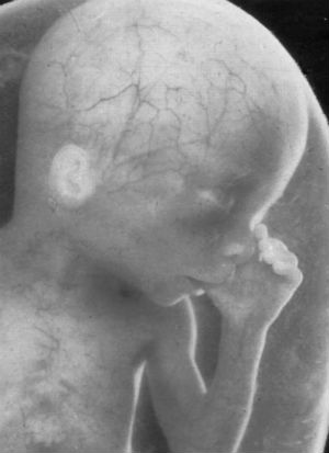 'The embryo has an amazing ability to correct itself:' Mothers may have been killing perfectly healthy babies