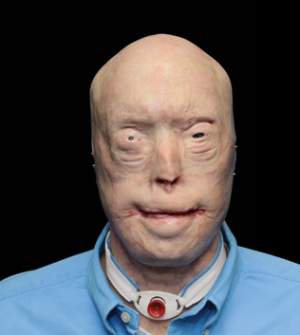 Miraculous face transplant restores faceless firefighter's faith in life