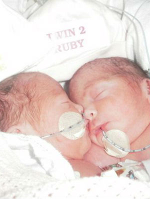 'They couldn't tell what was connecting them': Miraculous story of conjoined twins defeating the odds