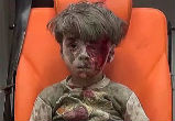 Image of Omran Daqneesh, dazed and soaked in his own blood, witnessed his home being destroyed (Polaris).