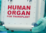 Image of Is it right to kill coma patients for their organs?