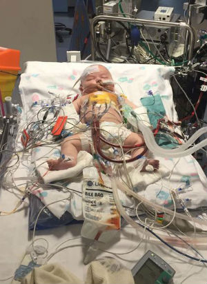 Baby's heart stops for 15 HOURS - Unbelievable story of survival