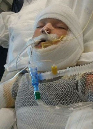 Join us in prayer for special needs child set on fire by bullies