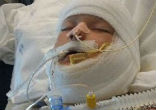 Image of A 10-year-old boy special needs boy was set on fire by another child (Team Kayden/GoFundMe).