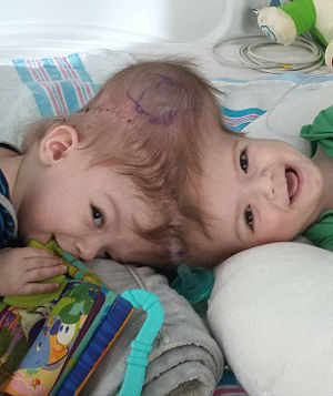 'God gave you these babies' - Distraught couple relies on faith in face of painful decision involving conjoined twins