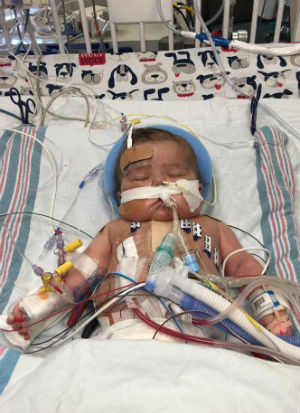 WATCH NOW Baby's heart beats outside body (WARNING: GRAPHIC CONTENT)