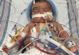Image of Baby Henry was born with two serious heart conditions (Hope for Henry/Facebook).