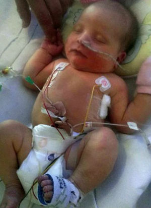 'I thought I lost her' - Girl born with water instead of blood shocks doctors